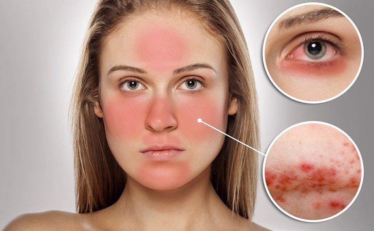 Шелушение кожи, раздражение - возможные побочные реакции