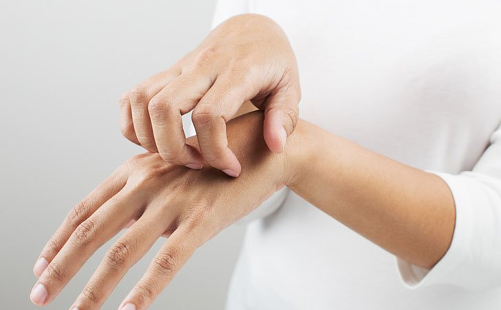 Аллергия на финики возможна
