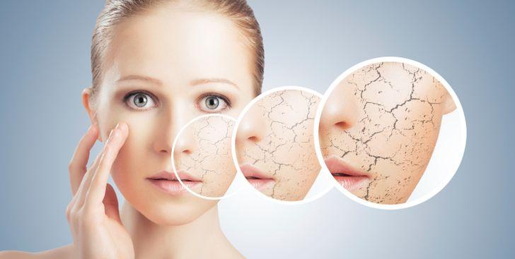 Проблемы из-за недостатка белков соединительной ткани