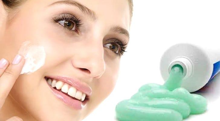 Зубная паста и сода от прыщей
